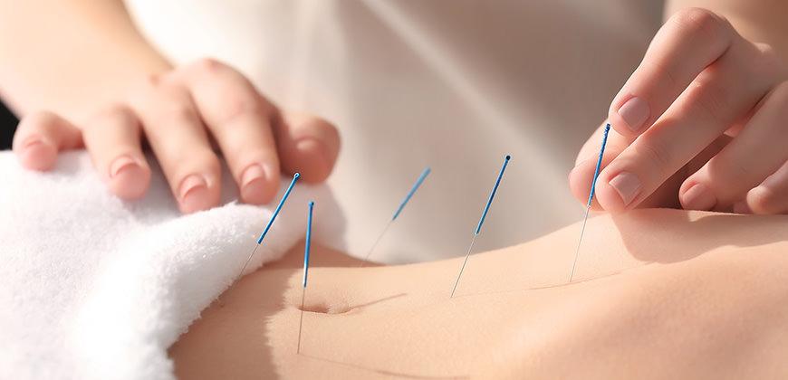 I benefici dell'agopuntura per cefalee e mal di testa otite colite impotenza e sterilità sindrome premestruale e molto altro.